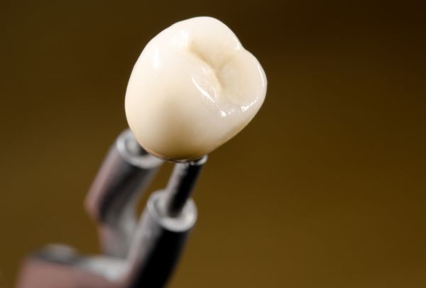 How Dental Crowns Can Fix Spaces Between Teeth